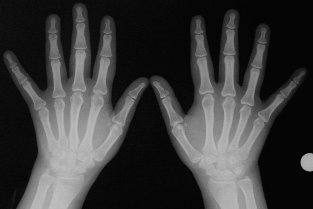 Romatoid Artrit Nedir?